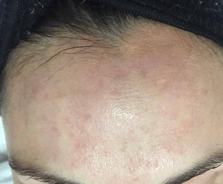 Course of Blemish Control Facial & Laser Photo Rejuvenation - After Forehead