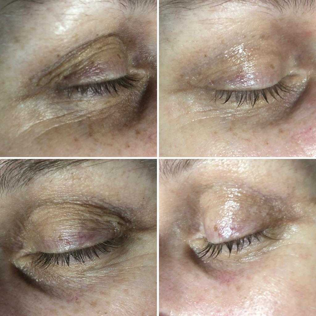 Mesotherapy Nappage