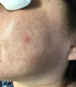 Fractional Laser Treatment - After