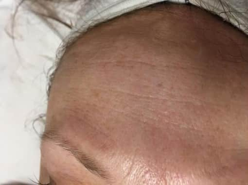 Radio Frequency Skin Tightening Facial - Before